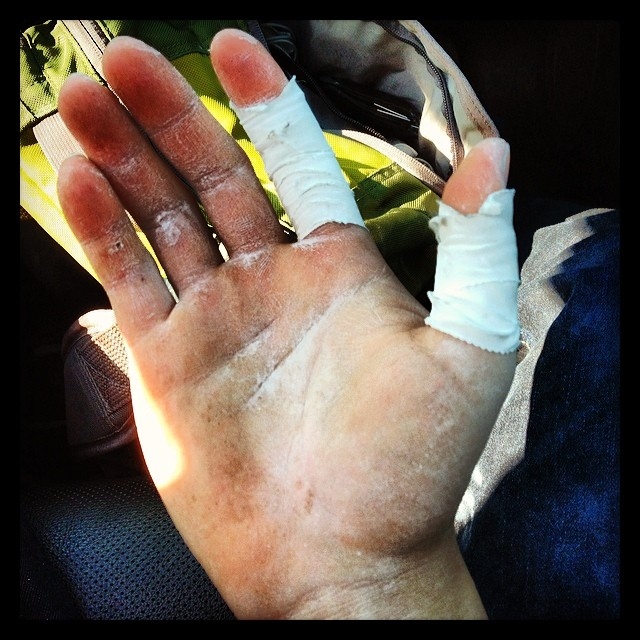 Spent an amazing day out in the Lynn Woods Reservation #bouldering my hands off. Hurts like a mother, but there's no feeling like finally sending a tricky problem! #nopainnogain